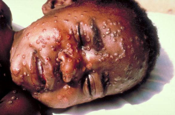 Criança em estado grave da doença da varíola