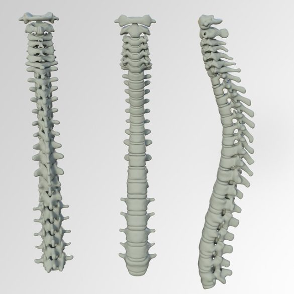 Foto com 3 perspectivas da coluna vertebral de um ser humano
